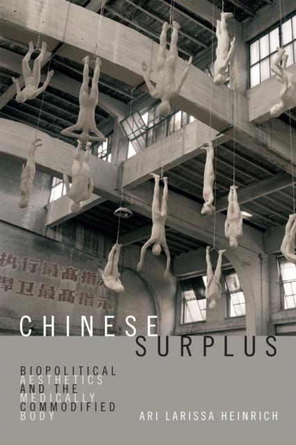 Chinese Surplus