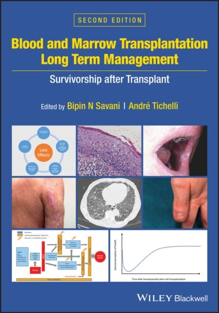 Blood and Marrow Transplantation Long Term Management