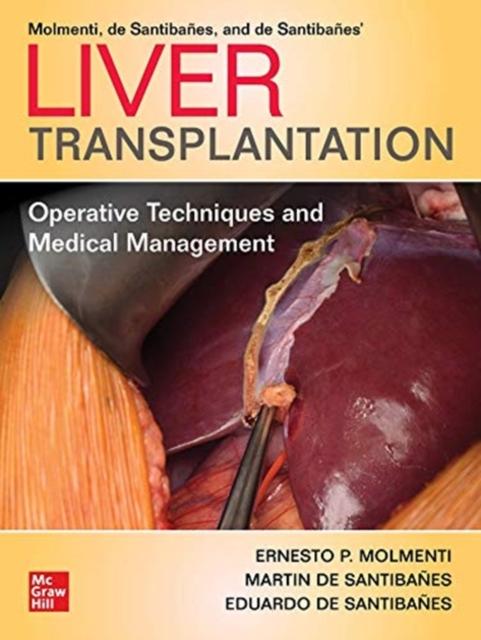 Liver Transplantation: Operative Techniques and Medical Management