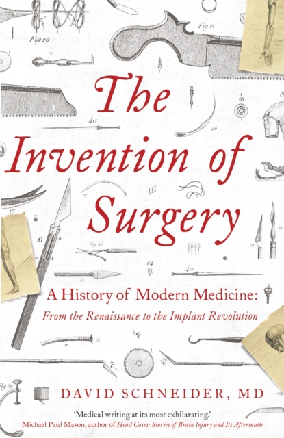 Invention of Surgery