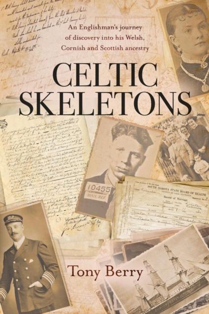 Celtic Skeletons