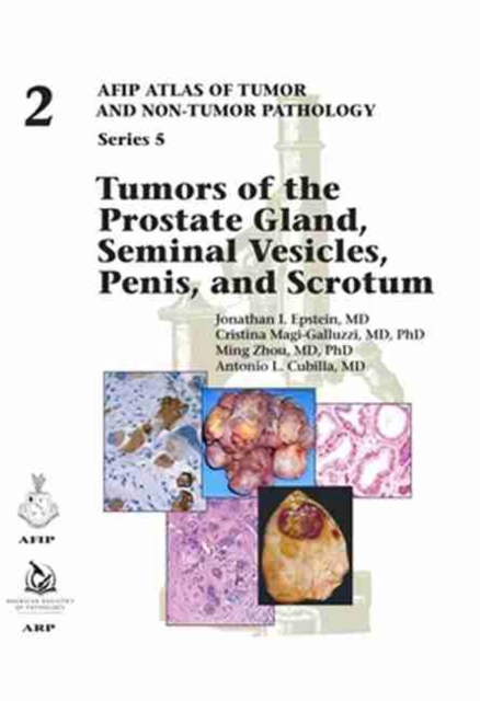 Tumors of the Prostate Gland, Seminal Vesicles, Penis, and Scrotum