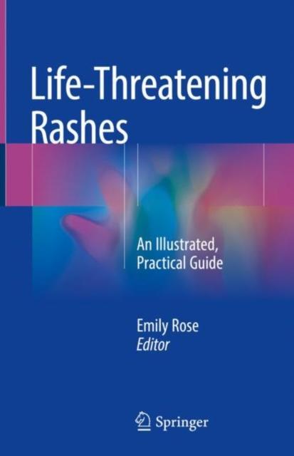 Life-Threatening Rashes