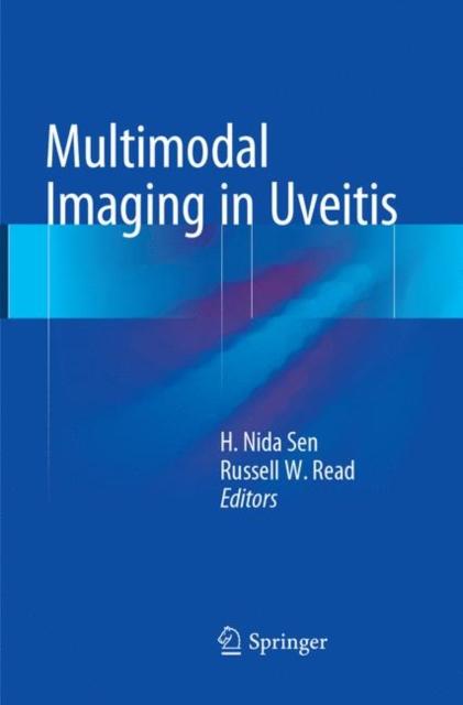 Multimodal Imaging in Uveitis