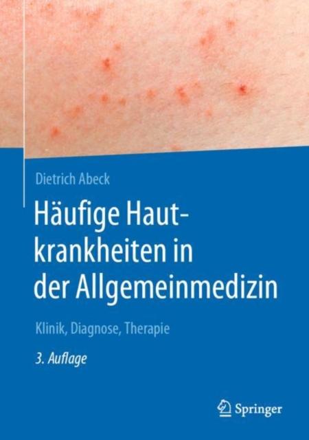 Haufige Hautkrankheiten in der Allgemeinmedizin