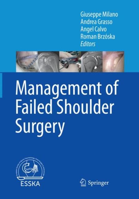 Management of Failed Shoulder Surgery