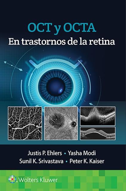 OCT y angiografia de OCT en trastornos de la retina