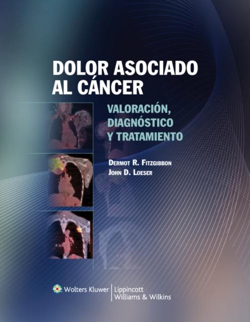 Dolor asociado al cancer