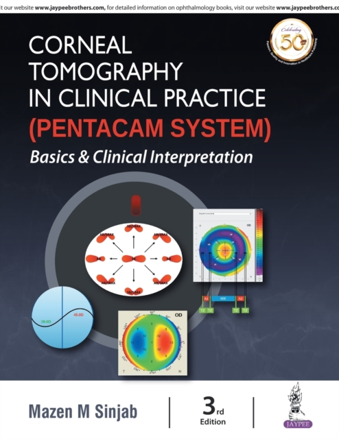 Corneal Tomography in Clinical Practice (Pentacam System)
