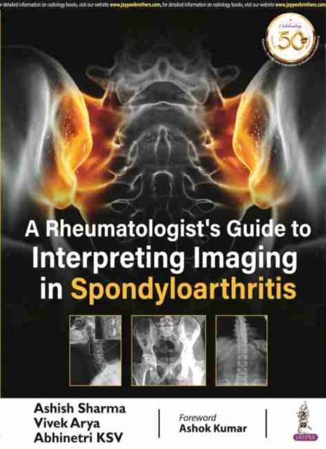 Rheumatologist's Guide to Interpreting Imaging in Spondyloarthritis