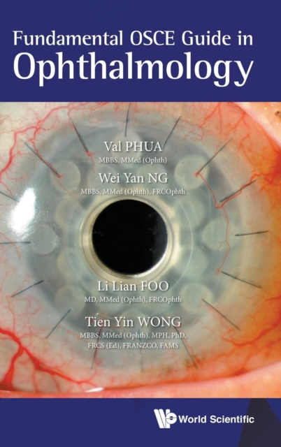Fundamental Osce Guide In Ophthalmology